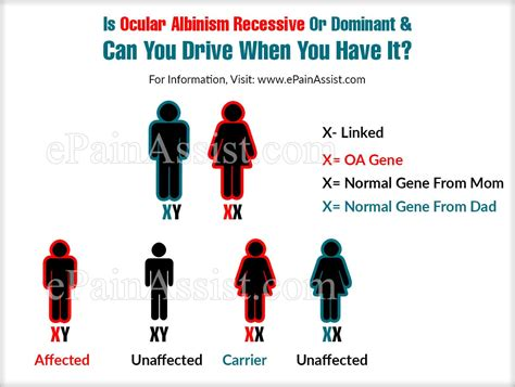 Is Ocular Albinism Recessive Or Dominant & Can You Drive