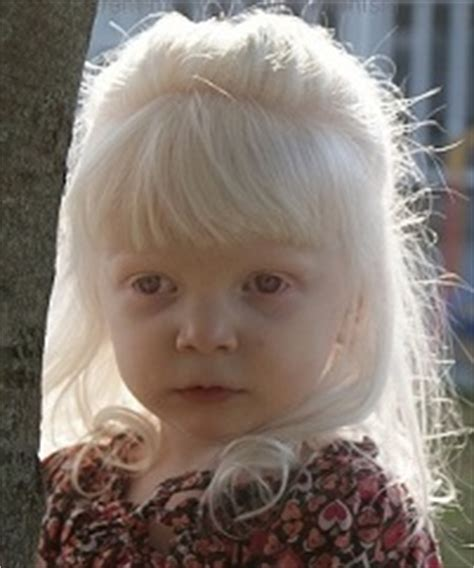Helping Children With Albinism
