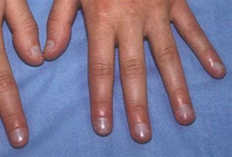 Nail Disorders: What Nails Say About Your Health
