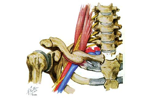 Thoracic outlet syndrome - Symptoms, diagnosis and