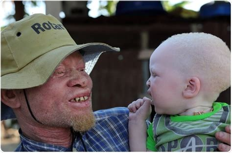 Albinism - Partial Absence of Pigment in the Skin