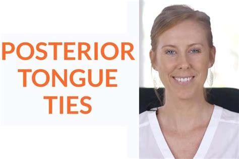 What's A Posterior Tongue-Tie? - Myofunctional Therapy